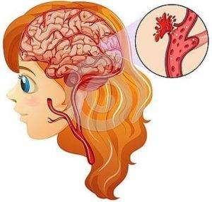Beyin Kanaması Belirtileri Nelerdir ?