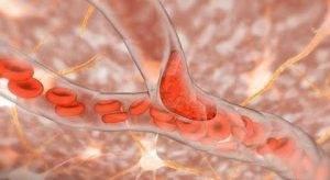 Beyin Kanamasına Hangi Bölüm Bakar ?