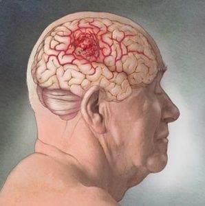 Beyin tümörü Nedir ?