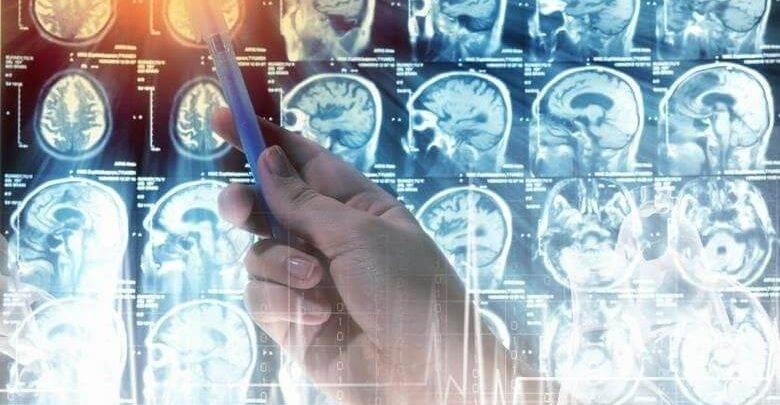 Beyin Tümörü Sebepleri Nelerdir ?