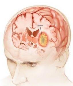 Beyin Tümörü Ameliyatı