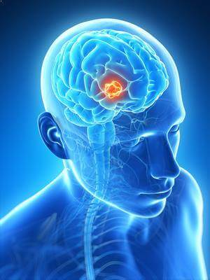 Beyin Tümörü Belirtileri Nelerdir ?