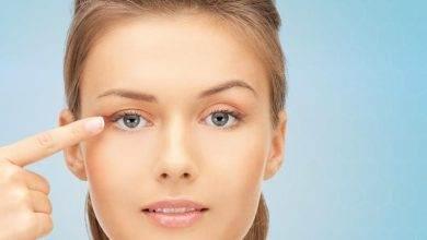 Göz kapağı düşmesi nedir ? Göz kapağı düşmesi neden olur ?