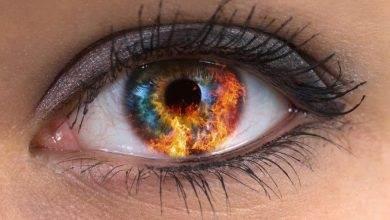 Göz tansiyonu nedir Nasıl tedavi edilir