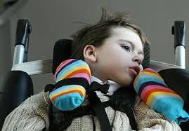 Cerebral palsy Kaç Yaşında Belli Olur ?