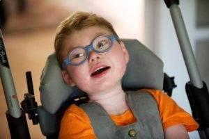Cerebral palsy Çeşitleri Nelerdir ?