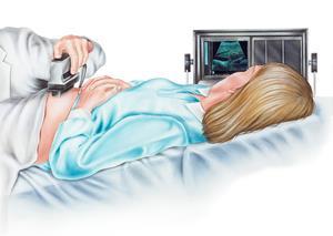 Amniyosentez gerektiren durumlar nelerdir