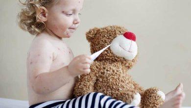 Çocuklarda Kızamık Hastalığı Nedir