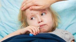 Çocuklarda Kızamık Hastalığı nedir ?