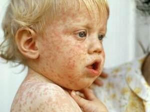 Kızamık Hastalığı Nasıl Bulaşır?