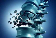 Osteoporoz Nedir