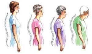 Osteoporoz Belirtileri Nelerdir