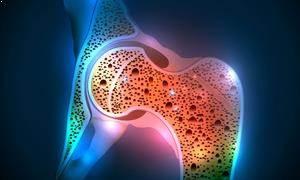 Osteoporoz Teşhis ve Tedavisi
