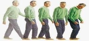 Parkinson Hastalığı Nasıl İlerler?