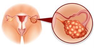 Yumurtalık kanseri nedir