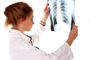 Akciğer kanseri kaç farklı türden oluşur