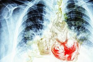 Akciğer Kanseri Kaç Evreden Oluşur