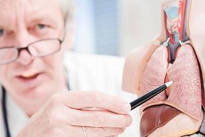 Akciğer kanseri nasıl tedavi edilir