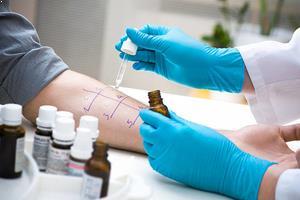 Alerji Testi Nasıl Yapılır