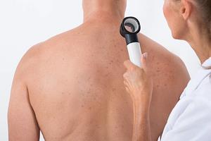 Cilt Kanseri Tedavisi Nasıldır