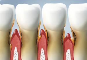 Diş Eti Çekilmesi Tedavisi Nasıldır