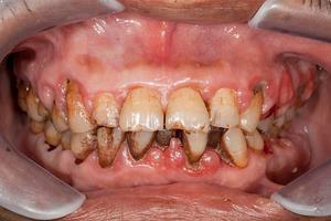 Diş eti kanaması nasıl önlenir