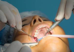 Diş eti kanaması nasıl tedavi edilir