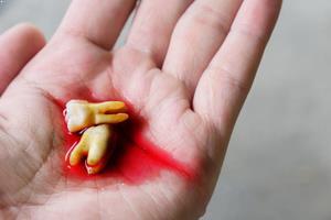 Diş eti kanaması tedavi edilmezse ne olur