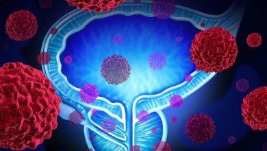 Prostat Kanseri Nedir