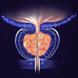 Prostat Kanseri Belirtileri Nelerdir