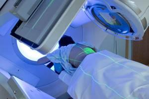 Işın tedavisi gören kişi radyasyon taşır mı