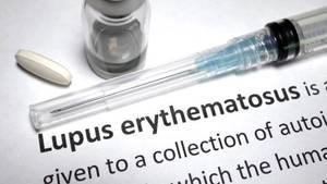 Lupus Nasıl Teşhis Edilir