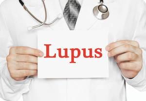 Lupus Nasıl Tedavi Edilir
