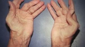 Reiter Sendromu (Reaktif Artrit) Nasıl Teşhis Edilir
