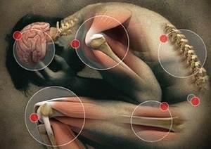 Reiter Sendromu (Reaktif Artrit) Nasıl Tedavi Edilir
