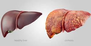 Hepatit B hangi hastalıklara yol açar