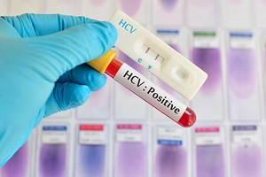 hepatit c korunma yolları