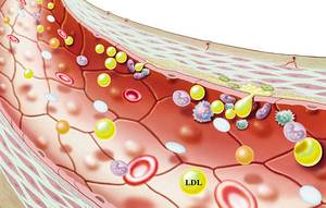 What is the height of LDL cholesterol