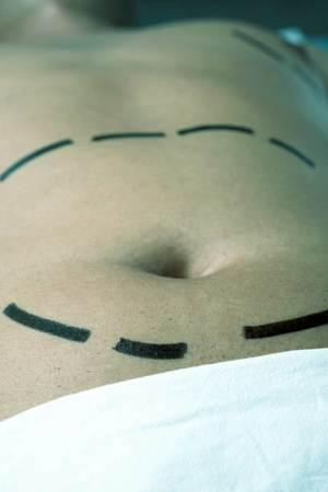 Mide küçültme ameliyatı nasıl yapılır