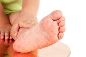 Bebeklerde El Ayak Hastalığı