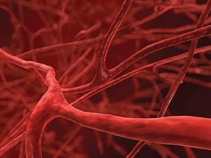 What is Behcet's disease