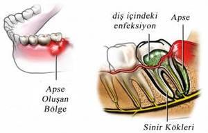İltihaplı dişe kanal tedavisi yapılır mı
