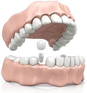 implant süreci