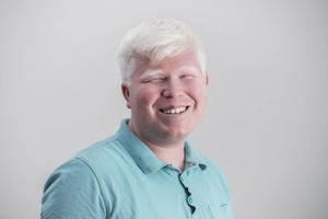 albinizm ne demek