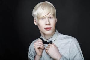 albinizm neden olur