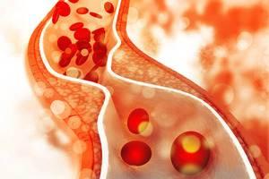 ateroskleroz nedenleri